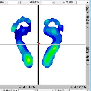サロンドピュアボディ フットケア 東京 表参道 足の悩み 靴が合わない 外反母趾 身体の歪み-毎月10名様【1DAY集中フットケア足靴診断トータルサポート】