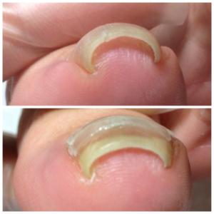 サロンドピュアボディ フットケア 東京 原宿 足の悩み 靴が合わない 外反母趾 身体の歪み-巻き爪って何が原因?ハイヒール!って思ってませんか?
