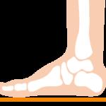 片頭痛と足裏のアーチについて