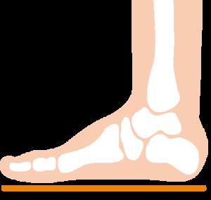 image-片頭痛と足裏のアーチについて | フットケアサロン 東京のサロンドピュアボディ